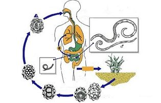 Népi gyógyszer a paraziták eltávolítására a testből, Gyengéd féreg orvoslás